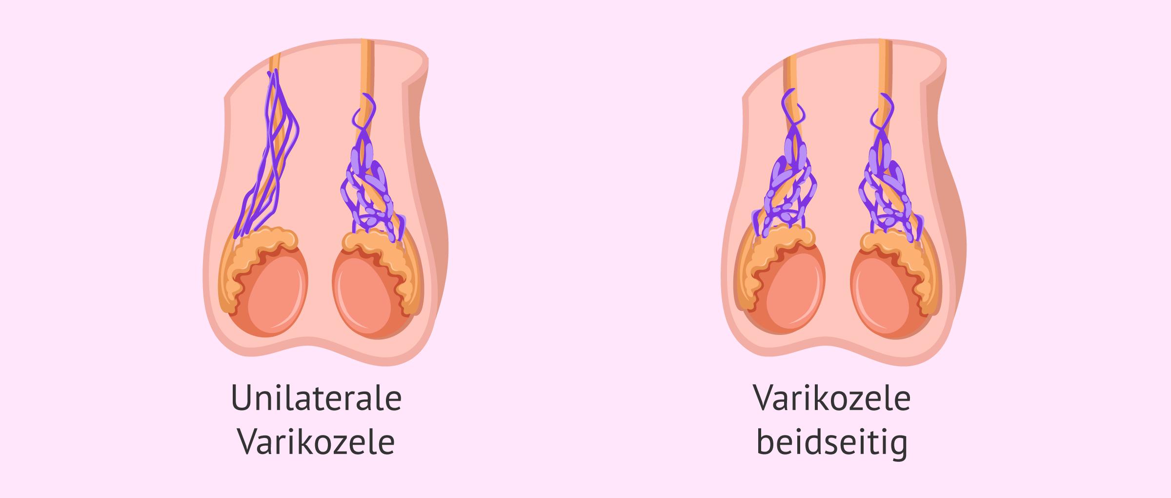 Kann eine Schwangerschaft bei einer Hodenvarikozele erreicht werden?
