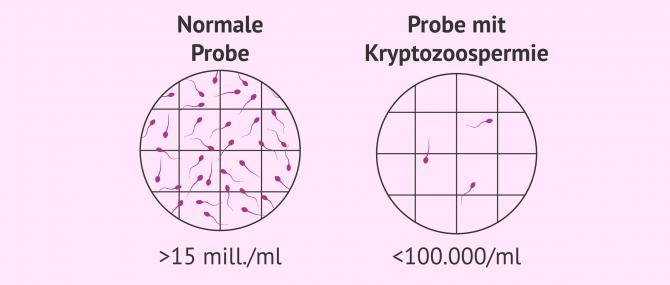 Imagen: Spermaprobe mit Kryptozoospermie
