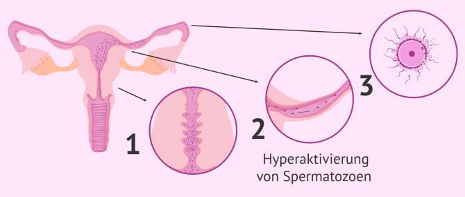 Imagen: Natürliche Spermakapazitation