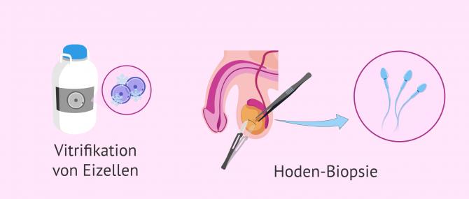Imagen: Optionen für die Spermagewinnung