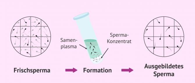 Imagen: REM Samenogramm Ergebnisse