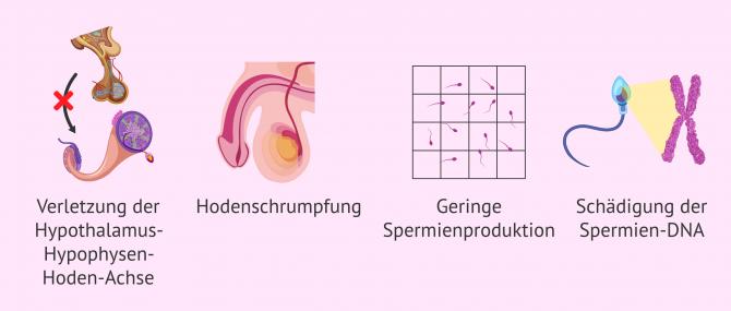 Imagen: Folgen der Varikozele auf die Fruchtbarkeit