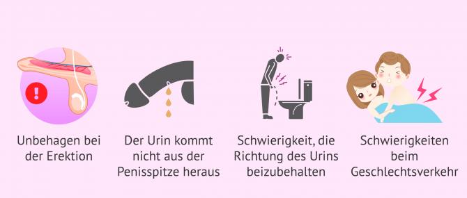 Imagen: Symptome der Hypospadie