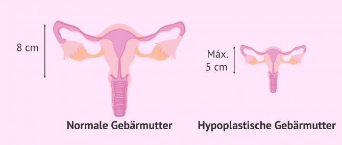 Imagen: Die hypoplastische Gebärmutter